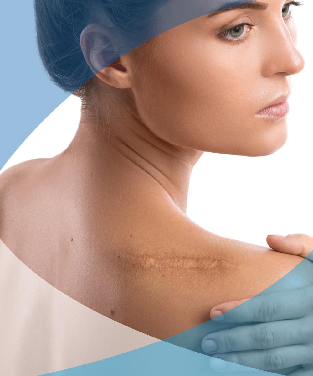 interventi grassetti cicatrici