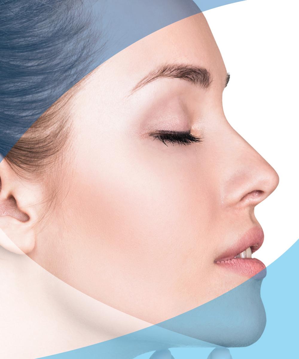 interventi grassetti rinoplastica